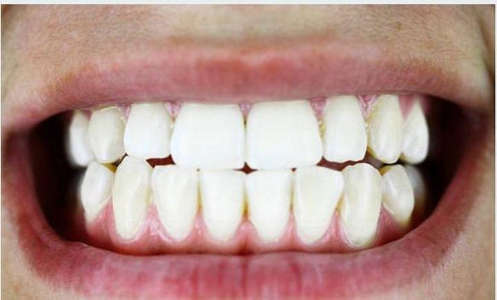 Mi hijo rechina los dientes. ¿Está estresado?